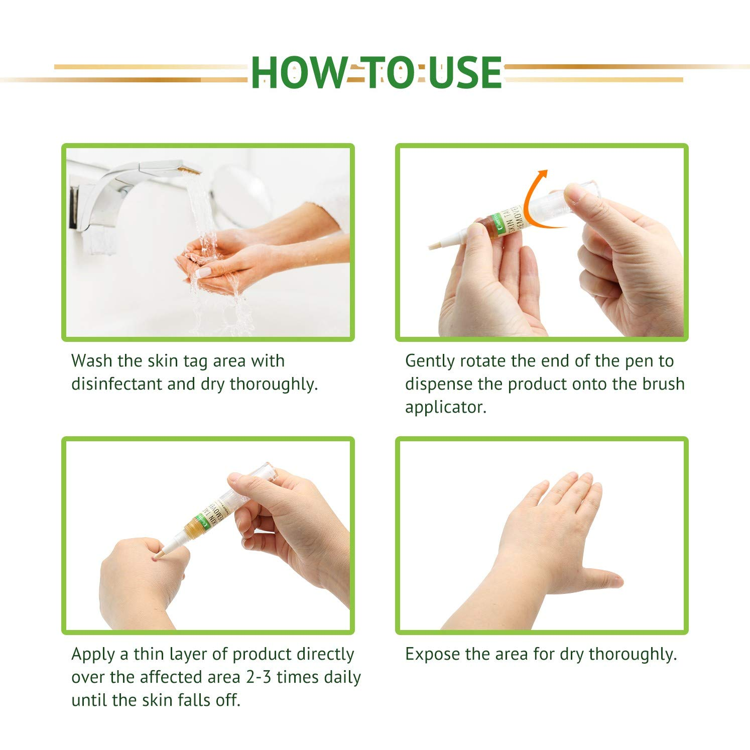 Ulensy Best Skin Tag Remover For Removing Skin Tag